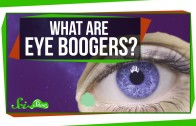 What Are Eye Boogers?