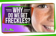 Why Do We Get Freckles?