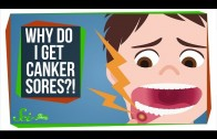 How Do You Get Rid of a Canker Sore?